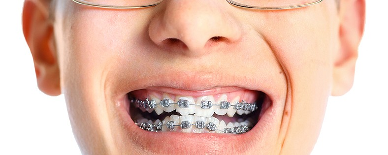 Problems_with_Braces_Retainers